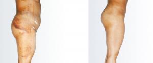 liposukcja