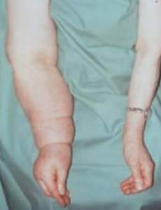 obrzęk limfatyczny